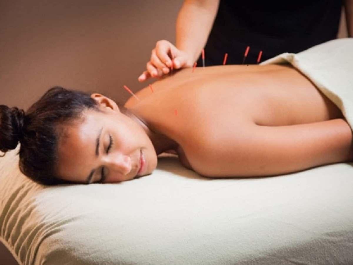 Mulher deitada na maca com agulhas de acupuntura nas costas.