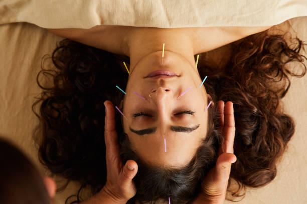 Mulher com agulhas de acupuntura no rosto.